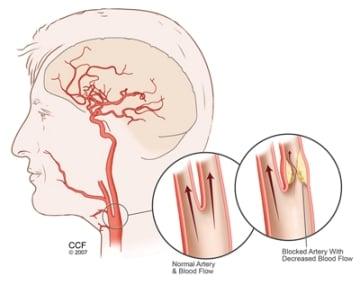 Carotid Angiography | Cleveland Clinic