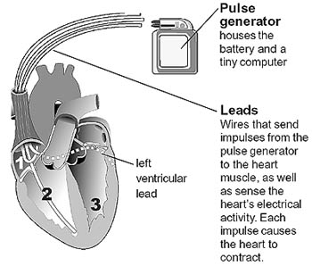 4665b4d2490e4168ab379b322b0b58dd.ashx biventricular pacemaker cleveland clinic
