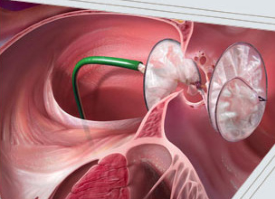 GORE HELEX® Septal Occluder - Cleveland Clinic