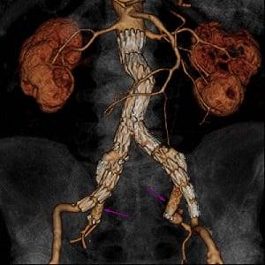 Abdominal Aortic Aneurysm Stent