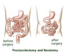 Proctocolectomy and Ileostomy