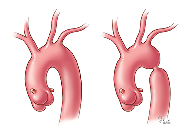 Image result for aortic coarctation
