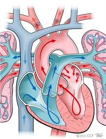 Newborn heart and normal circulation