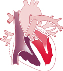Atrial contraction