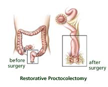 Restorative Proctocolectomy