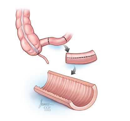 Figure 3. Augmentation Cystoplasty