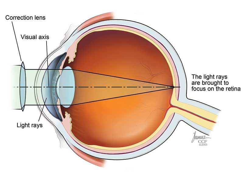 farsightedness diagnosis and tests cleveland clinic corrected vision muvagfo gallery