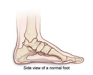 Charcot Foot | Cleveland Clinic