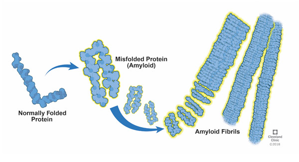 Proteins change shape (misfold) then clump together and form amyloid fibrils.