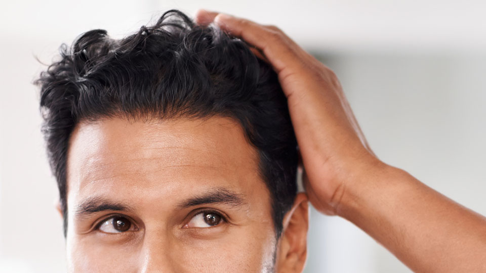 Hair Loss Treatment | Cleveland Clinic