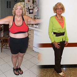 Michelle Knowles Before and After | Cleveland Clinic Florida