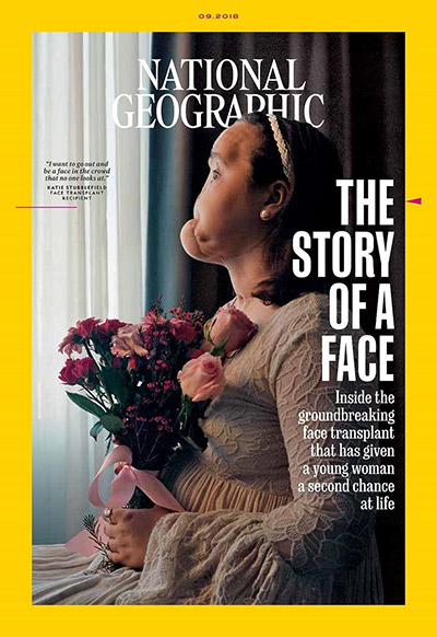 National Geographic Cover for The Story of a Face | Cleveland Clinic