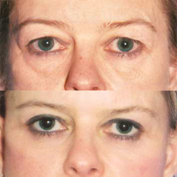EyeLid and Browlift Before and After | Cleveland Clinic
