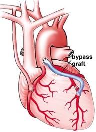Bypass Graft