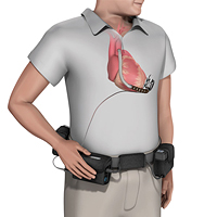 Implantable Left Ventricular Assist Device (LVAD) Carrying Case Low