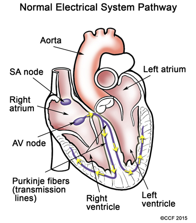 Pediatric Arrhythmias