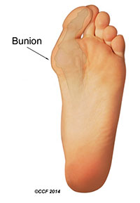 Bunion Foot Illustration
