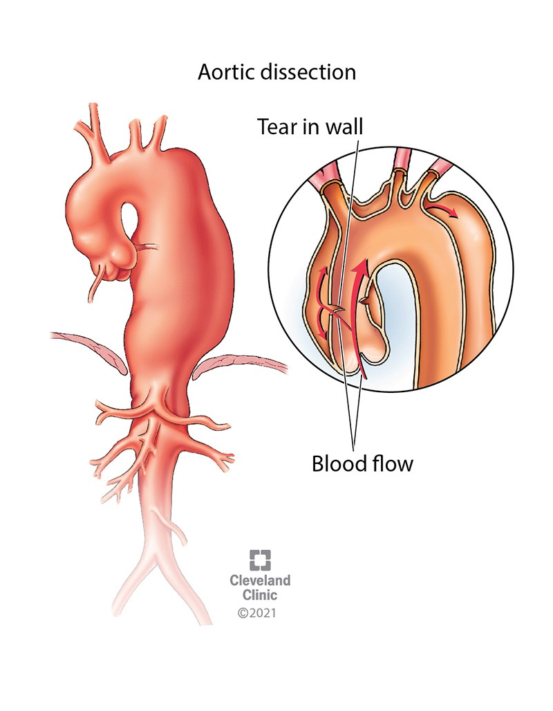 Aortic dissection is a tear in the inner layer of the aortic wall. Blood pours through the tear, causing a separation between the wall layers, a bulge in the artery's appearance and weakness in that area of the aorta.