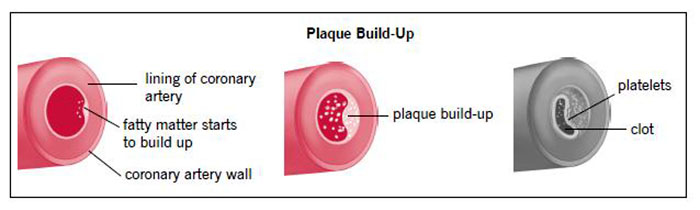 CAD Plaque Buildup