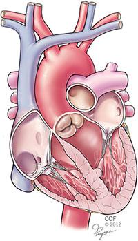 Diseased Aortic Valve