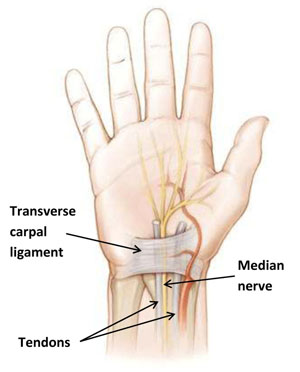 carpal tunnel syndrome symptoms, treatment & more | cleveland clinic, Human Body