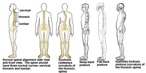 How To Improve Posture For A Healthy Back Good Posture