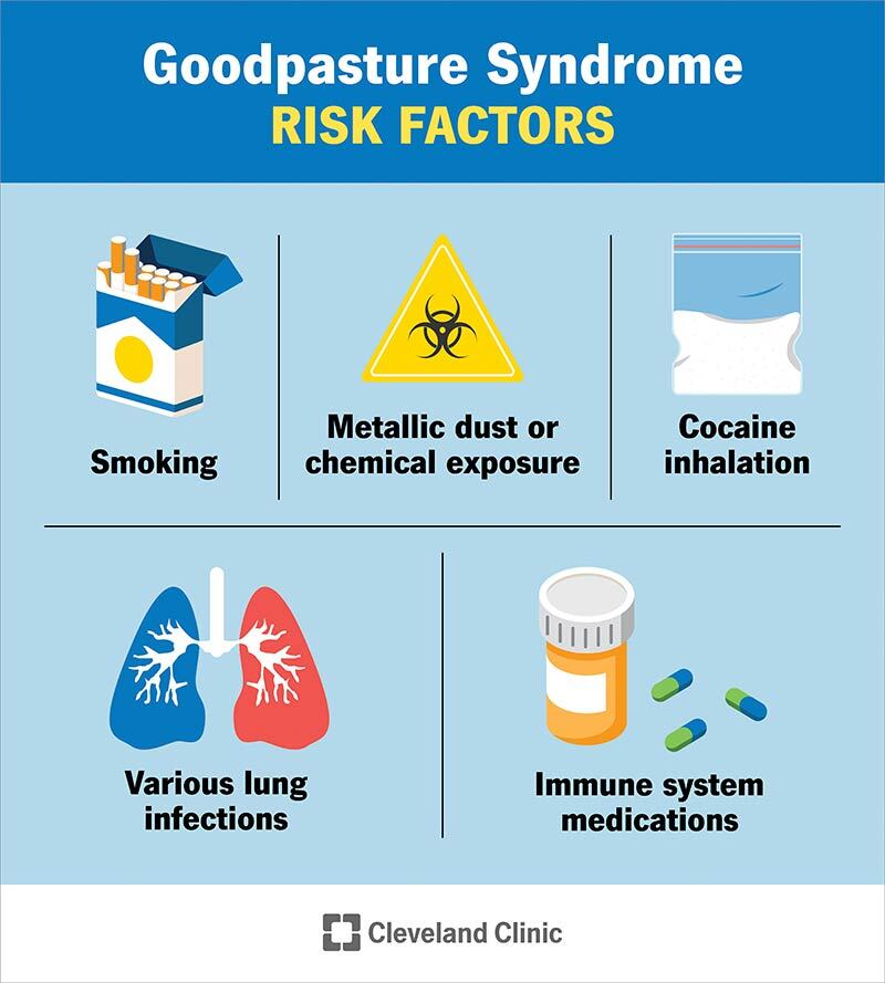 various risk factors for good pasture syndrome