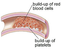 What causes excess protein in the blood?