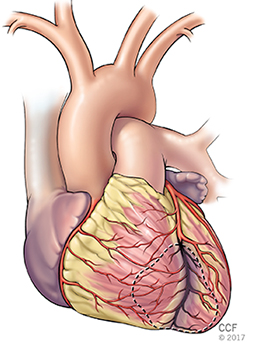 Your coronary arteries cleveland clinic this allows blood to flow around the blocked artery to another artery nearby or to the same artery past the blockage protecting the heart tissue from ccuart Gallery