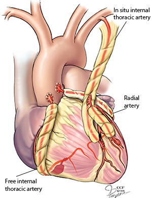Coronary Artery Bypass Surgery - Artery Grafts