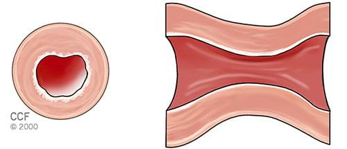 Coronary Spasm