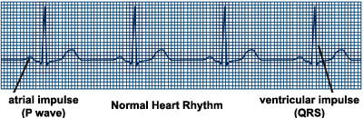 ECG recording of normal heart rhythm