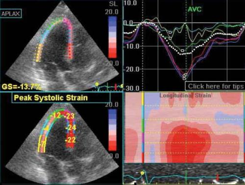 Echocardiogram with Strain Imaging