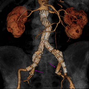Digital CT showing endovascular stenting of an abdominal aortic aneurysm with bilateral iliac aneurysms