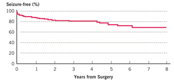 Hemispherectomy Treatment Outcomes