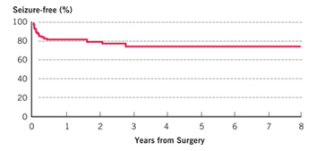 Posterior Quadrant Resection Treatment Outcomes