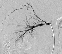 Intimal Fibroplasia, Fibromuscular Dysplasia
