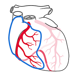 Left Anterior Descending (LAD) Occlusion (Front of heart)