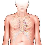 partial sternotomy