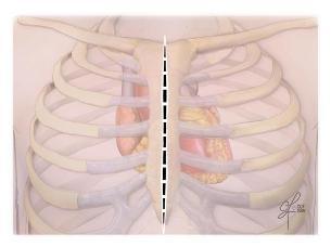 Full Sternotomy