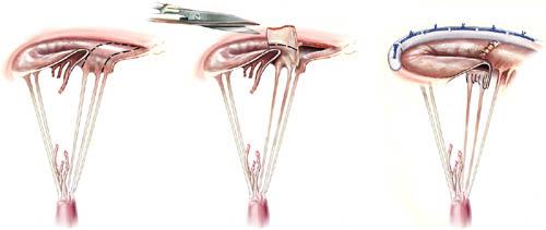 Chordal transfer to correct anterior leaflet prolapse.