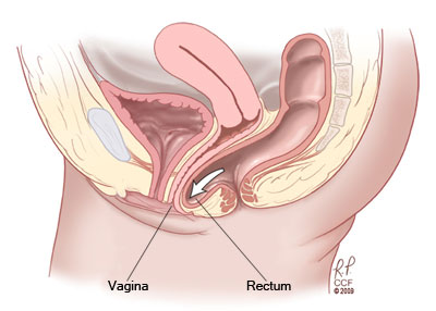 Incision into the wall of the vagina