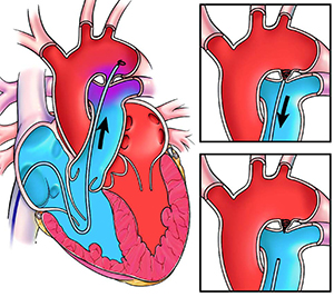 Patent Ductus Arteriosus (PDA) in Adults: Treatment Options ...