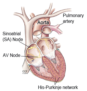 Permanent pacemaker cleveland clinic electrical system of the heart ccuart Choice Image