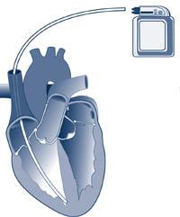 Arrhythmia Treatments | Cleveland Clinic