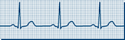 Recorded Normal EKG | Cleveland Clinic