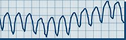 recorded ventricular tachycardia