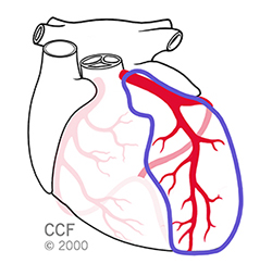 Right Coronary Artery Occlusion (Front of heart)