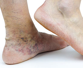 Varicose veins and spider veins - Cleveland Clinic
