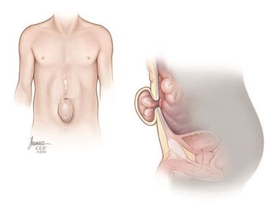Ventral hernia front and side views